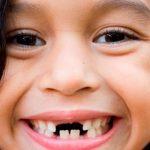 Giải đáp nằm mơ thấy rụng răng mang tới điềm báo gì và đánh số nào?